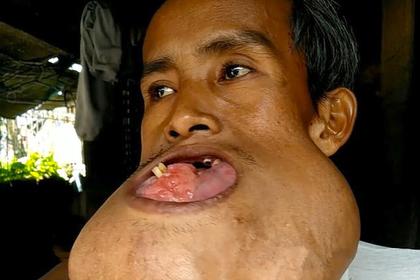 Во рту строителя выросла опухоль размером с голову