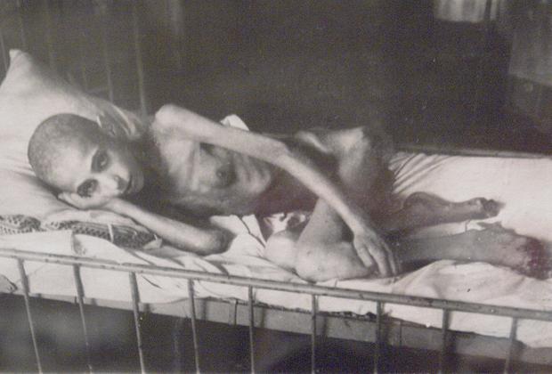 Жертва «ленинградской болезни» — дистрофии.