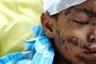 Мальчик, пострадавший от землетрясения и цунами в Индонезии. В результате разгула стихии на острове Сулавеси погибли больше 1,4 тысячи человек.