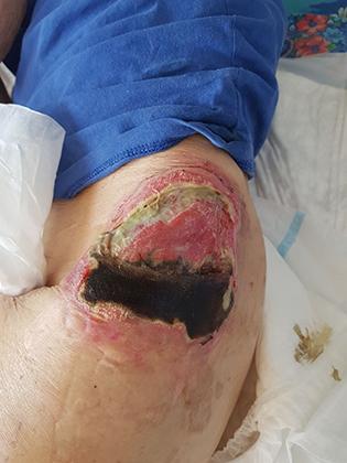 Раны от пролежней у одной из пациенток
