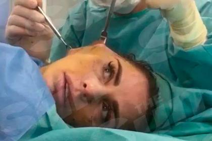 Известная телеведущая записала себя на видео во время пластической операции
