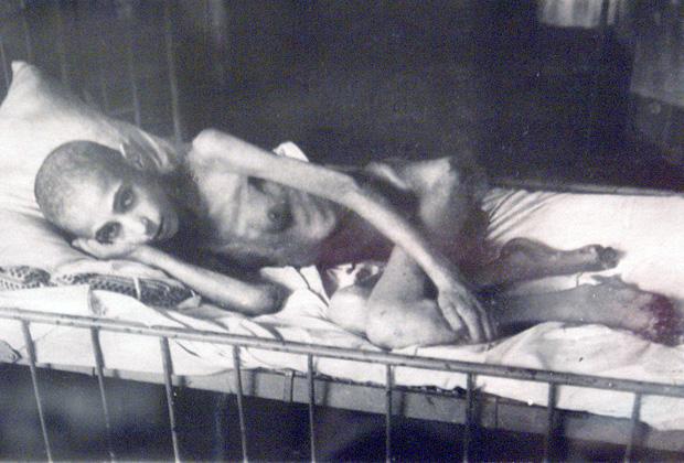 Жертва «ленинградской болезни» — алиментарной дистрофии
