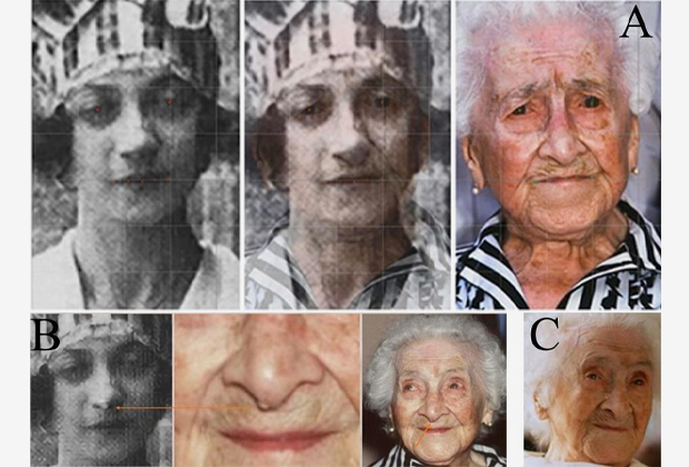 В верхнем ряду математик наложил снимок юной Ивонны и старой Жанны. Слева снизу обращает внимание на общую деталь — фиброму на носу. Справа снизу Жанна в 117 лет.