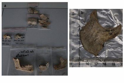 Во Франции раскопали коллекцию отрубленных голов