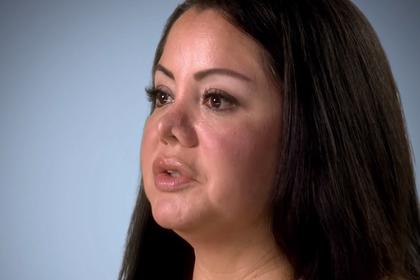 Женщина пришла на операцию по уменьшению живота и очнулась с новым носом