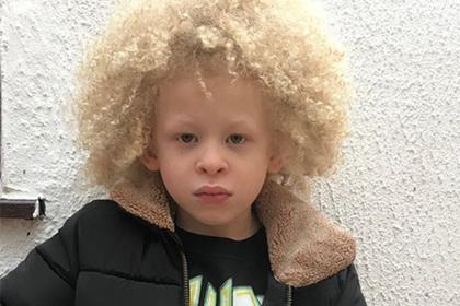 Случайный снимок пятилетнего ребенка принес ему славу