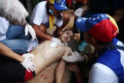 Более 300 человек пострадали в столкновениях на границе Венесуэлы