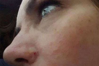 «Безобидное пятнышко» лишило американку носа