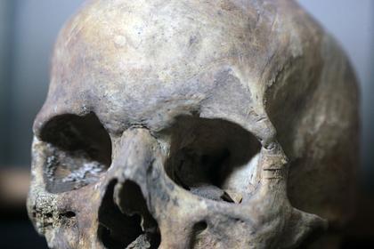 На чердаке московского дома нашли человеческий череп
