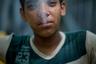 16-летний Хесус живет на улице уже четыре года. В детский дом он ни разу не попадал, потому что на одном месте подолгу никогда не задерживается. «Я жил в Маракае с мамой, братьями и дядями, папу застрелили во время бандитской разборки, — рассказал он. — Они постоянно ругались из-за еды. Мне это надоело, я просто сел в автобус и уехал в Ла-Гуайру». После этого мальчик жил в разных местах: Чаральяве, Баринасе и даже в колумбийской Арауке. «Мне нравилось жить на границе с Колумбией, там можно заработать больше денег», — рассказал Хесус.