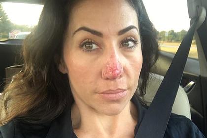 Женщина стала затворницей из-за выросшего вдвое носа