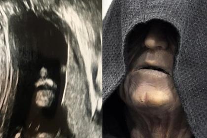 В еще не родившемся ребенке разглядели владыку ситхов