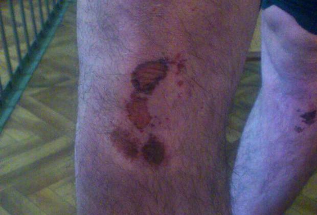 Повреждения на теле Ласлова после пыток