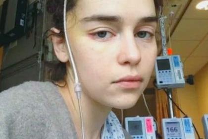 Послеоперационные фото Эмилии Кларк с трубкой в голове слили в сеть
