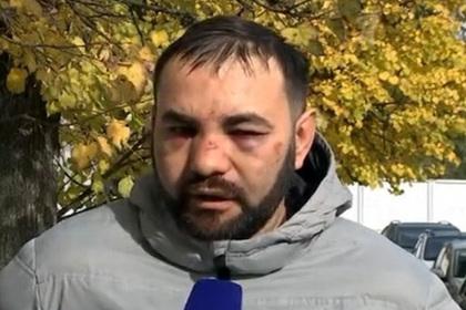 Побитый Мамаевым водитель потратил на лечение сотни тысяч рублей