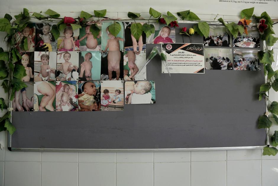 Фотографии, висящие на стене больницы Адена, демонстрируют детей, страдающих от голодного истощения.