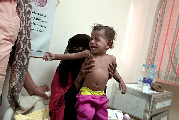 Мирное население Йемена страдает от голода, а гуманитарная помощь доходит далеко не до всех. На фото — оголодавшая мать пытается спасти своего заболевшего годовалого сына. Малыша рвало, он кашлял и страдал поносом. Семья Молхам может позволить кормить малыша смесью только раз в день.
