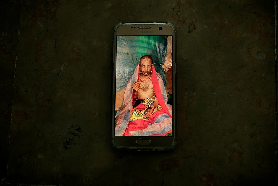 Переживший плен хуситов йеменский лаборант Монир Аш-Шарки (Monir al-Sharqi). Его жестоко пытали: избивали, обливали кислотой, вырывали ногти, били током, а затем выкинули в реку. Члены его семьи считают, что родственника истязали из-за его политической активности в прошлом.