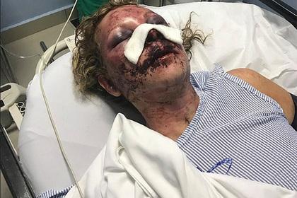 Сотрудник пятизвездочного отеля избил постоялицу до полусмерти