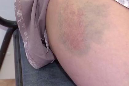 Пьяные россияне столкнули с лестницы сделавшую им замечание беременную соседку