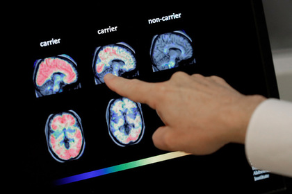 Получено средство против смертельной болезни мозга