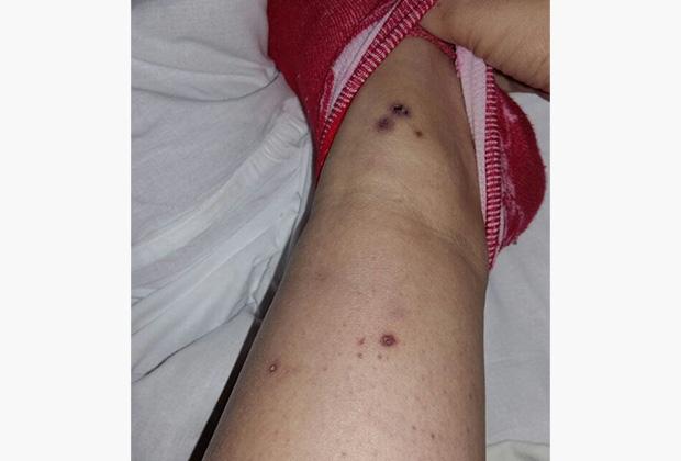 Фотографии своих ран, которые стали проявляться уже в больнице, Елена Мачкалян отправляла мужу за несколько дней до смерти. Сейчас они фигурируют в материалах уголовного дела.