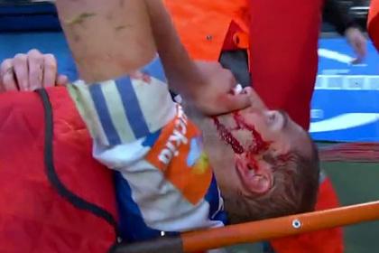 Футболист ударом ногой разбил сопернику лицо