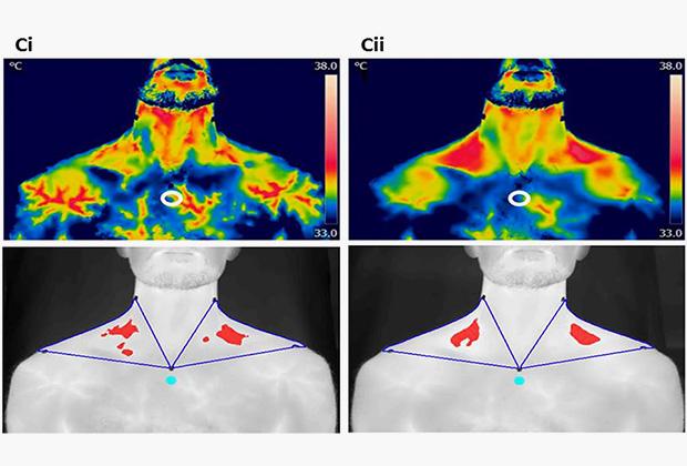 Визуализация термогенеза при употреблении кофе