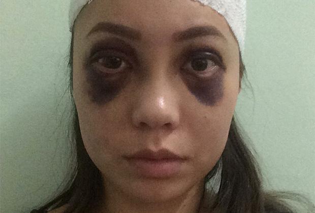 Потерпевшая Карина Ороева после нападения