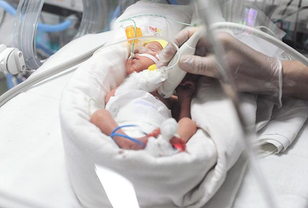 Новорожденный ребенок в кувезе в отделении реанимации и интенсивной терапии новорожденных