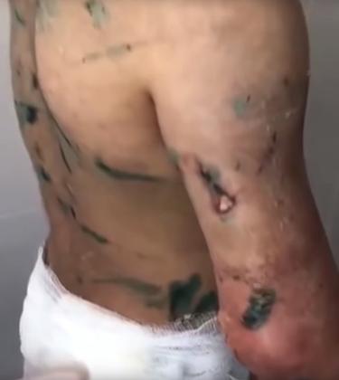 Травмы на теле Аиши