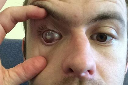 Мужчина принял душ в линзах и ослеп на один глаз