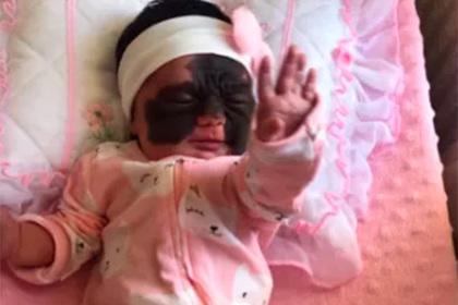 Младенца с черным родимым пятном на все лицо назвали монстром