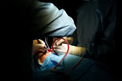 Родственники подарили девушке пластическую операцию и погубили ее
