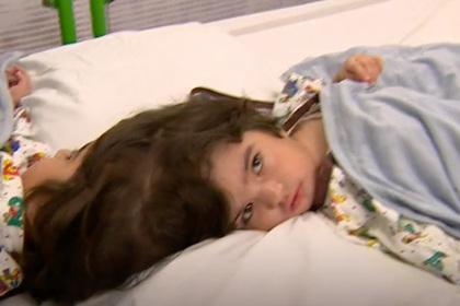 Сотня врачей разделила сросшихся головами близнецов