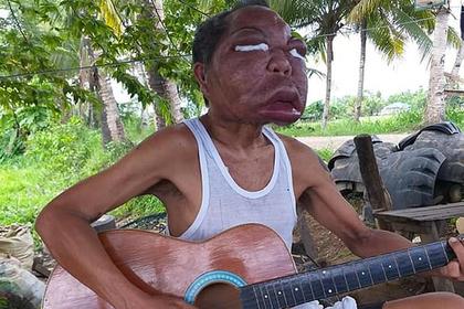 Загадочная болезнь увеличила лицо мужчины до аномальных размеров