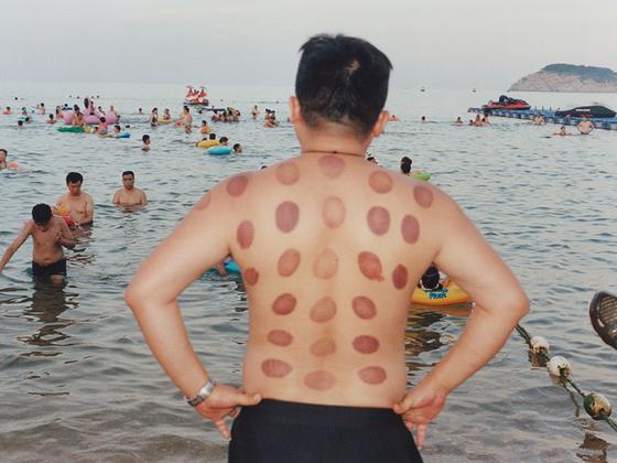 Лечение банками — одна из форм традиционной китайской медицины. Из-за присасывания банок к коже в терапевтических целях на теле остаются следы. Банкотерапия все еще практикуется не только в Китае, но и в других странах Азии.