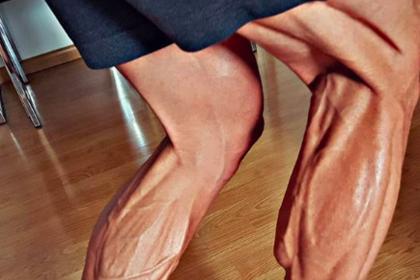 Фото ног велогонщика испугало пользователей сети