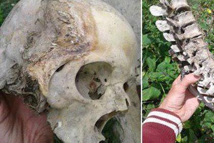 Россиянин совершил «непристойные действия» с черепами и заинтересовал полицию