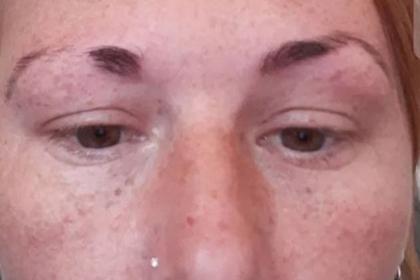 Неумелая косметолог-стажерка лишила женщину брови