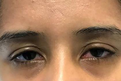Жжение в глазах оказалось симптомом смертоносной болезни