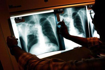 Назван самый подверженный туберкулезу регион России