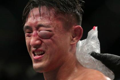 Фото гематомы бойца UFC испугало пользователей сети