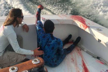Укушенного акулой дайвера спасли проплывавшие мимо медсестры