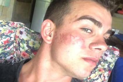 Турист сделал татуировку хной на популярном курорте и сжег лицо
