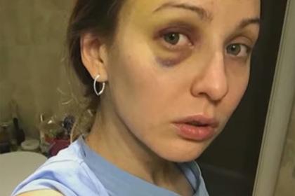 Россиянка защитилась от побоев мужа и получила судимость