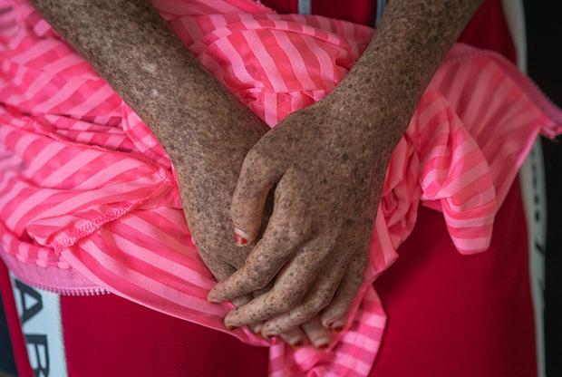 В Марокко пигментная ксеродерма — не такая уж редкость. На каждые десять тысяч уроженцев Северной Африки приходится хотя бы один, подверженный этому заболеванию. В Европе оно встречается в десять раз реже.
