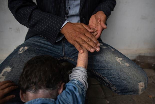 Ксеродерма — наследственное заболевание. Ему подвержены дети, которые получили копию мутировавшего гена и от матери, и от отца. Подобное чаще случается в местах, где приняты близкородственные союзы. Именно в этом заключается одна из причин распространенности этого недуга в Марокко. По официальным данным, в этой стране до 15 процентов браков заключаются между родственниками.