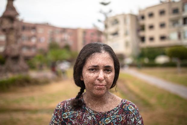 Осторожность, маски и защита от ультрафиолета помогают лишь до определенной степени. Фатимазехра Эль-Газауи пережила 50 хирургических операций, во время которых ей удаляли злокачественные новообразования на языке, веках и других частях тела.