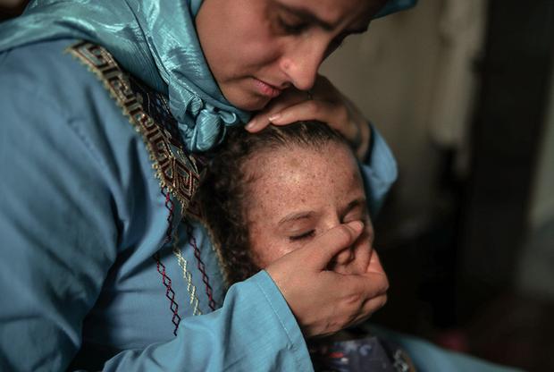 Шестилетняя дочь портного из города Сале Саида Эль-Мохамади и Марии Эль-Маруфи страдает от ксеродермы. Мать считает, что девочке нельзя учиться вместе со сверстниками. «Ей грустно, но я не могу рисковать и отпускать ее в школу, где она будет ничем не защищена», — говорит женщина. Семье помогает Ассоциация солидарности с лунными детьми Хабиба Эль-Газауи.